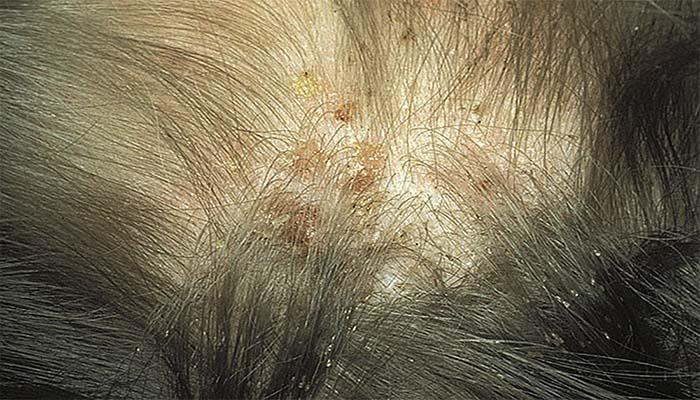 Гниды в волосах сон