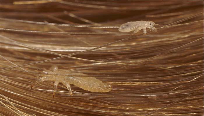 паразиты в волосах человека симптомы и лечение