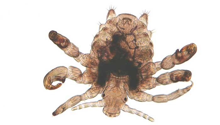 Головная вошь под микроскопом