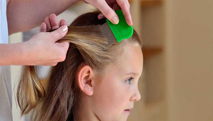 Дети более подвержены развитию педикулеза