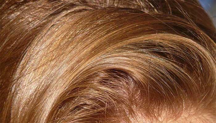 паразиты в волосах человека на голове