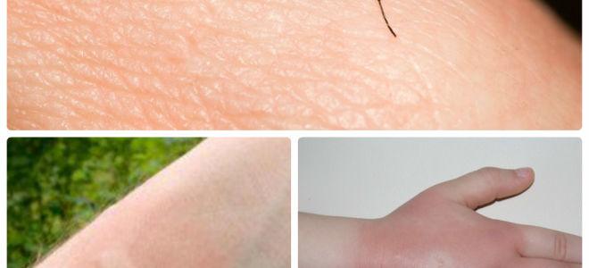 Как можно быстро снять зуд если сильно укусил комар