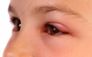 Что делать, если мошка укусила в глаз