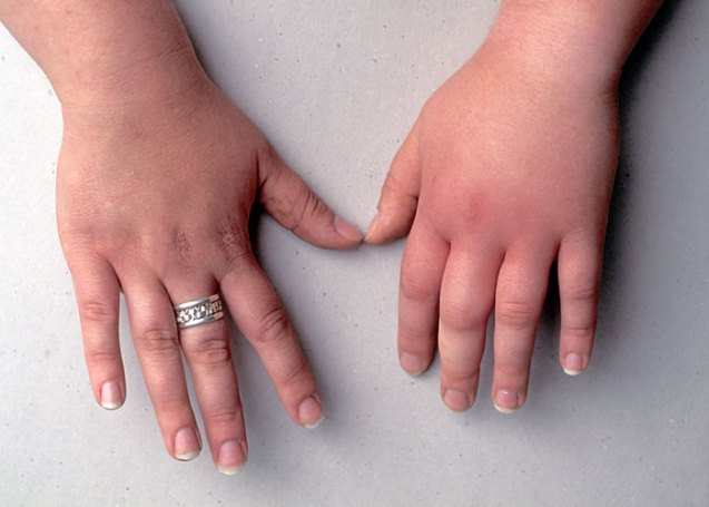 Симптомы укуса